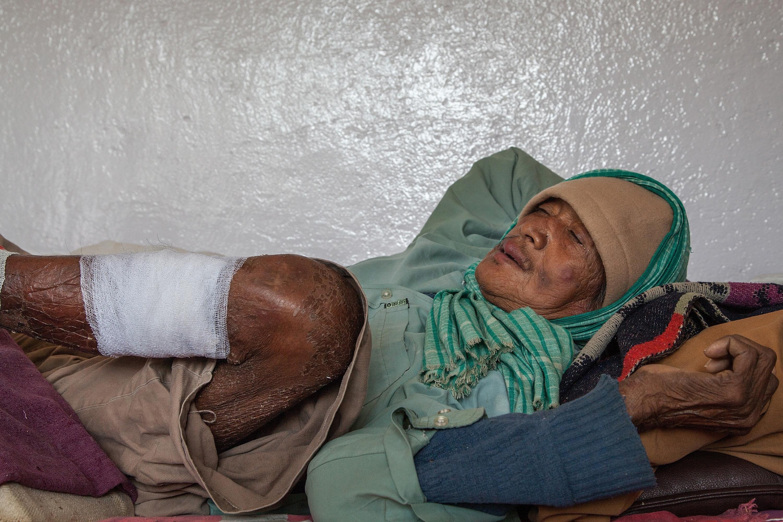 World Leprosy Day 2015