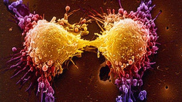 thymoquinone_cancer