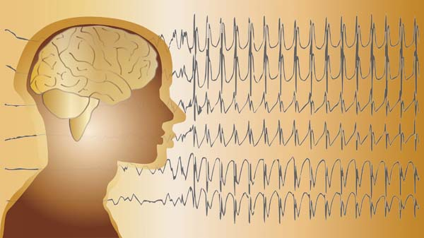 epilepszia-03